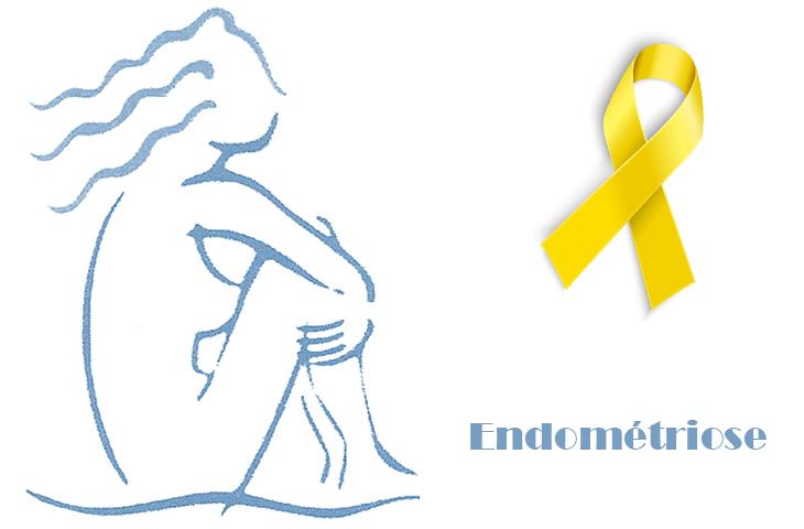 Endometriose : les règles c'est naturel, la douleur non !