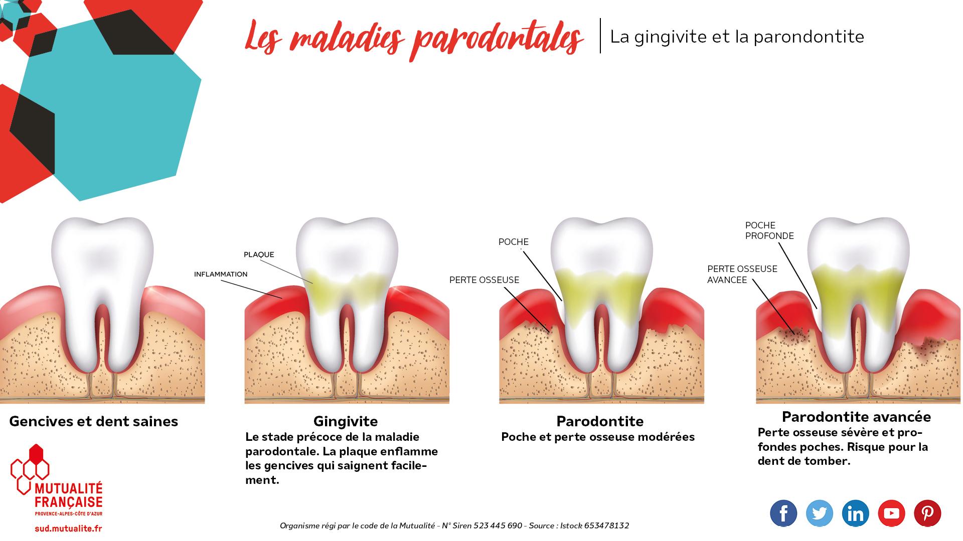 les maladies parodotales, gingivite et parondontie